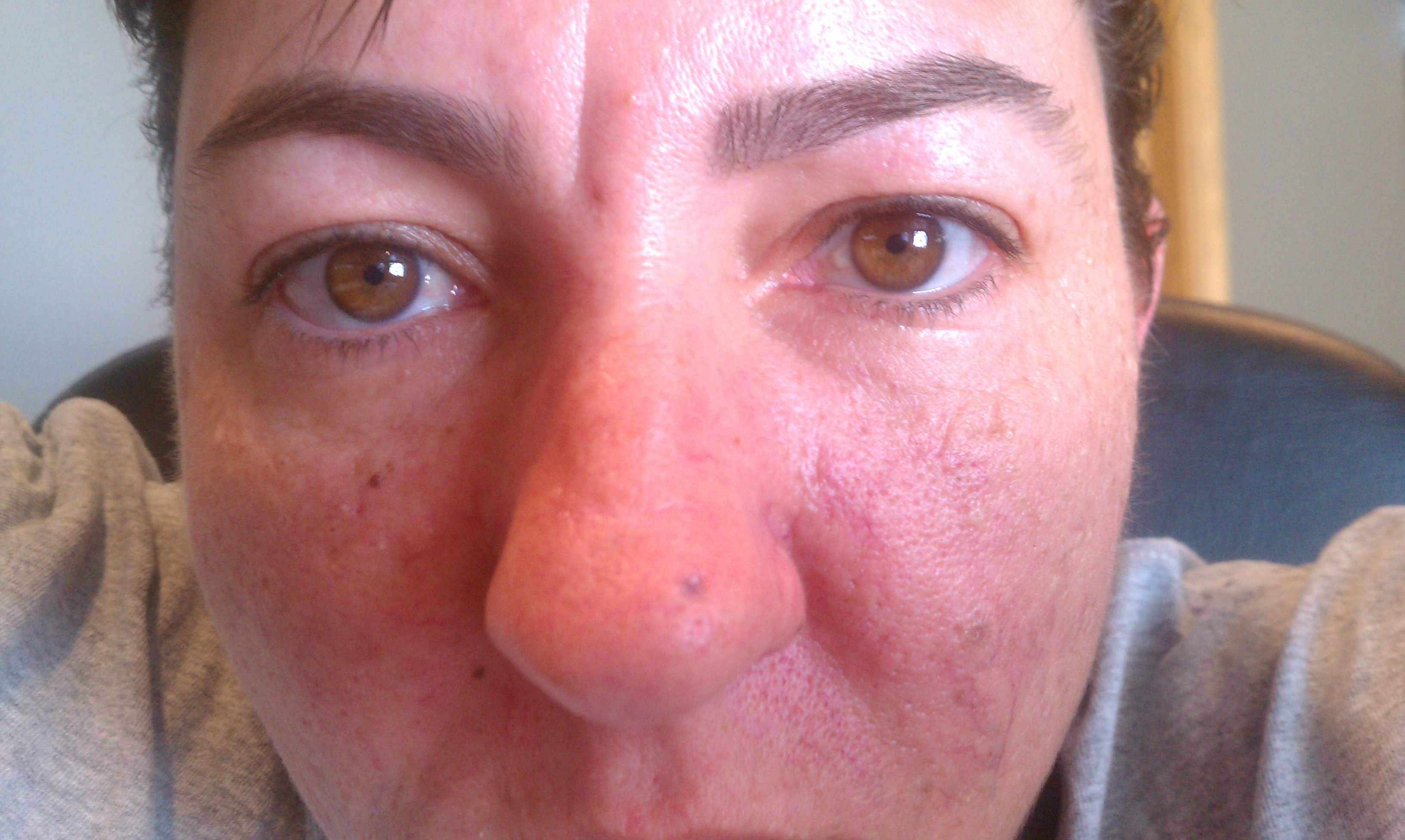 Image Result For Dry Nose On